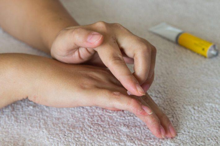 Kobieta leczy atopowe zapalenie skóry