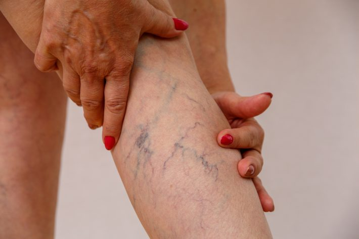Żylaki na nogach u kobiety