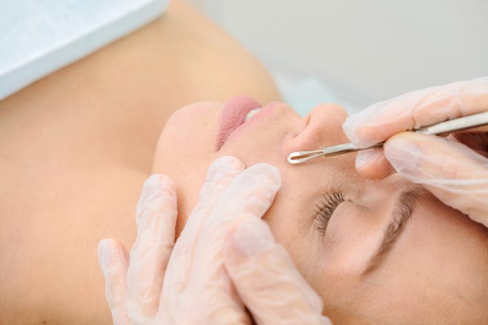 Kobieta podczas oczyszczania skóry