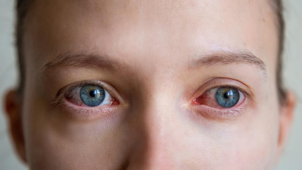 Alergiczne zapalenie spojówek – jakie są jego objawy? Jak sobie z nim poradzić?
