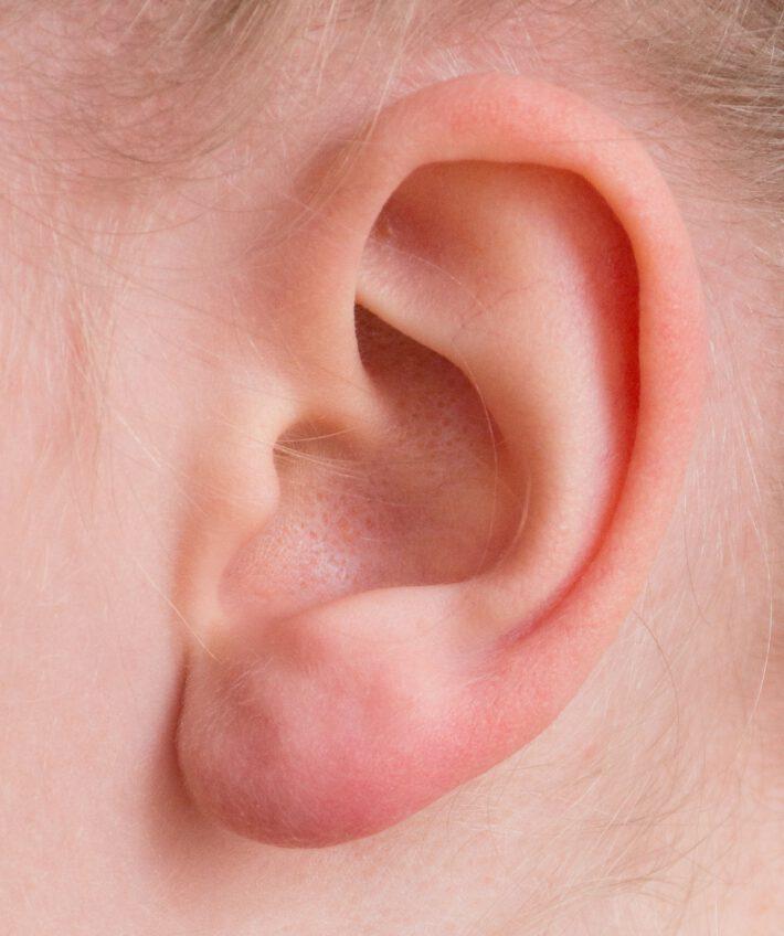 Swędzące ucho