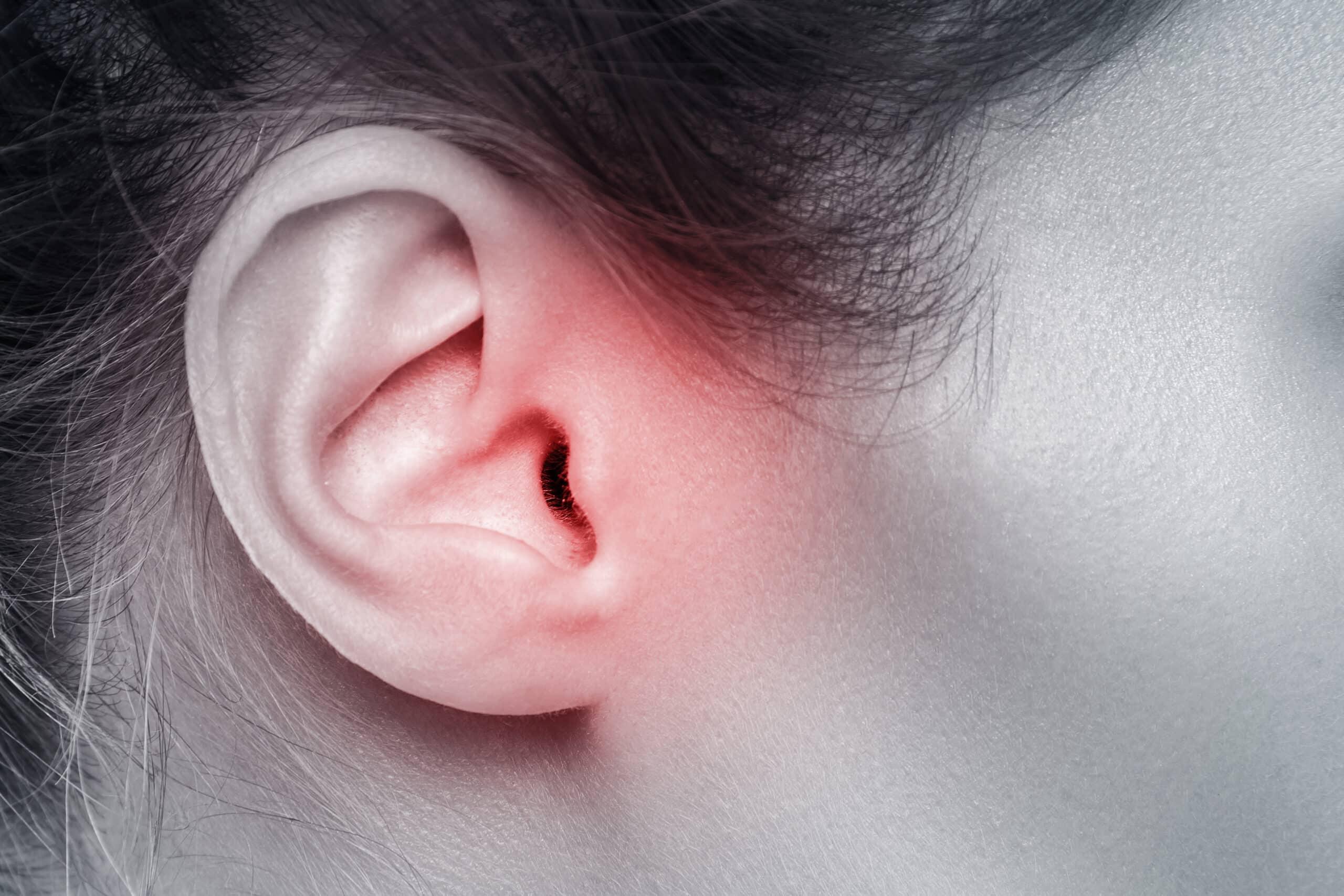 Jak działać w przypadku uciążliwego świądu uszu?