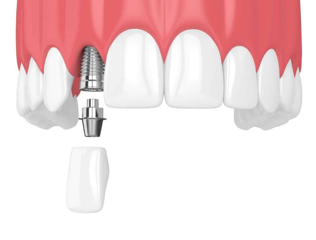 Implanty zębów - rodzaje, koszt i przeciwwskazania