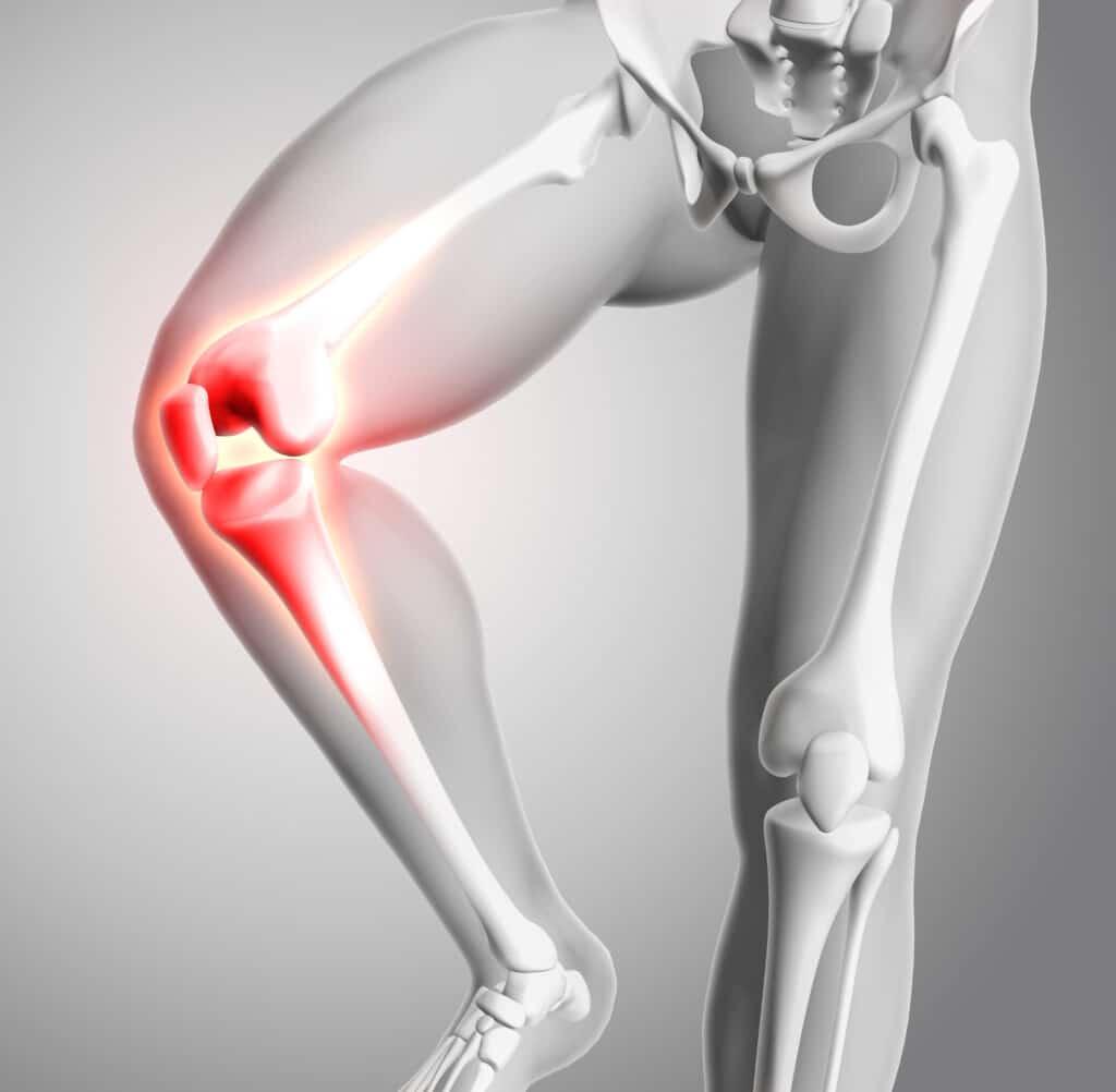 Osteochondroza atakująca kości