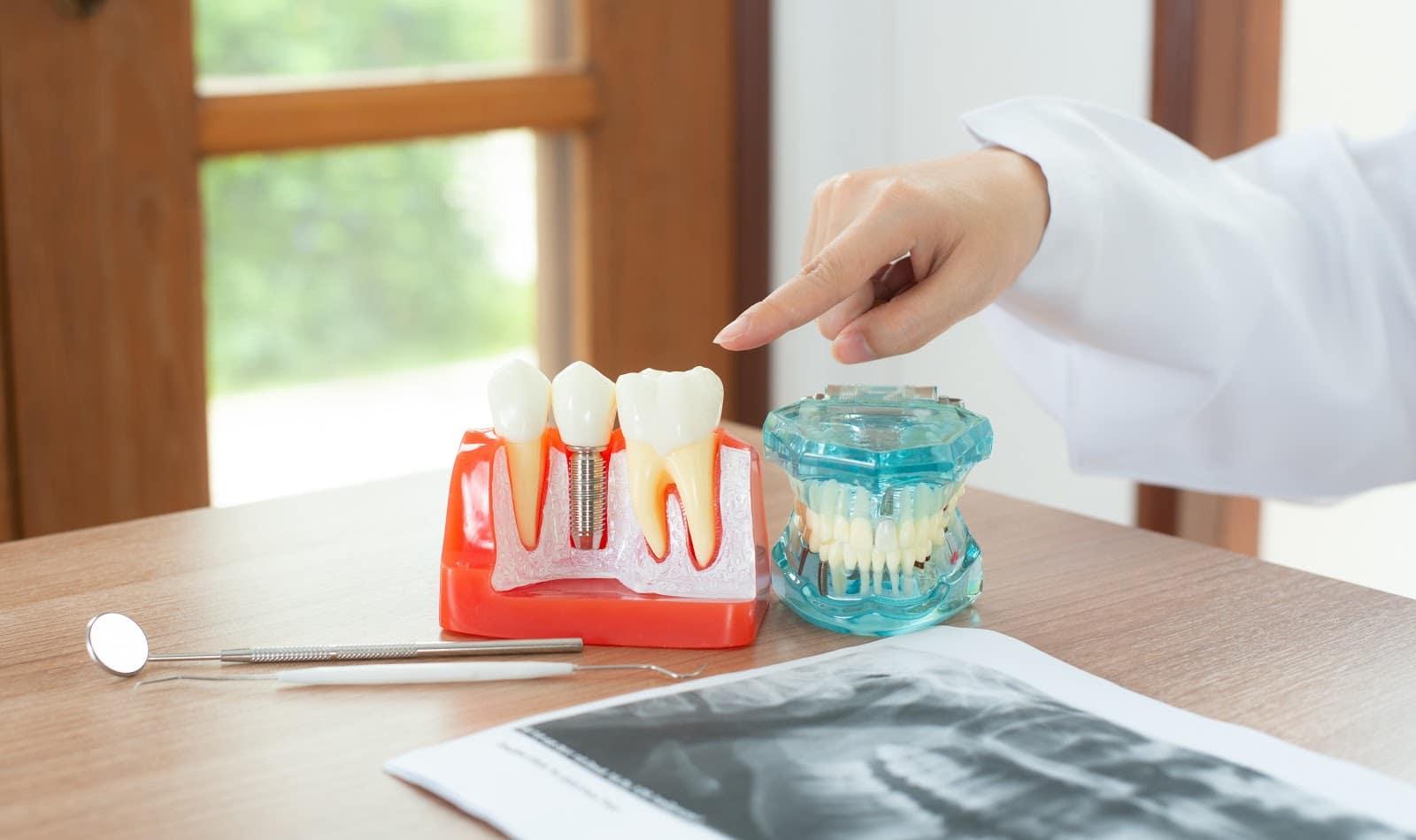 Implanty zębów przeciwwskazania