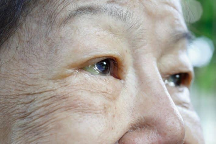 Kobieta z opadającymi powiekami przed zabiegiem w Klinice MEdycyny Estetycznej Derm-Estetyka w Gdyni