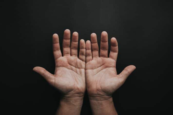 Cisawica i jej objawy na dłoniach