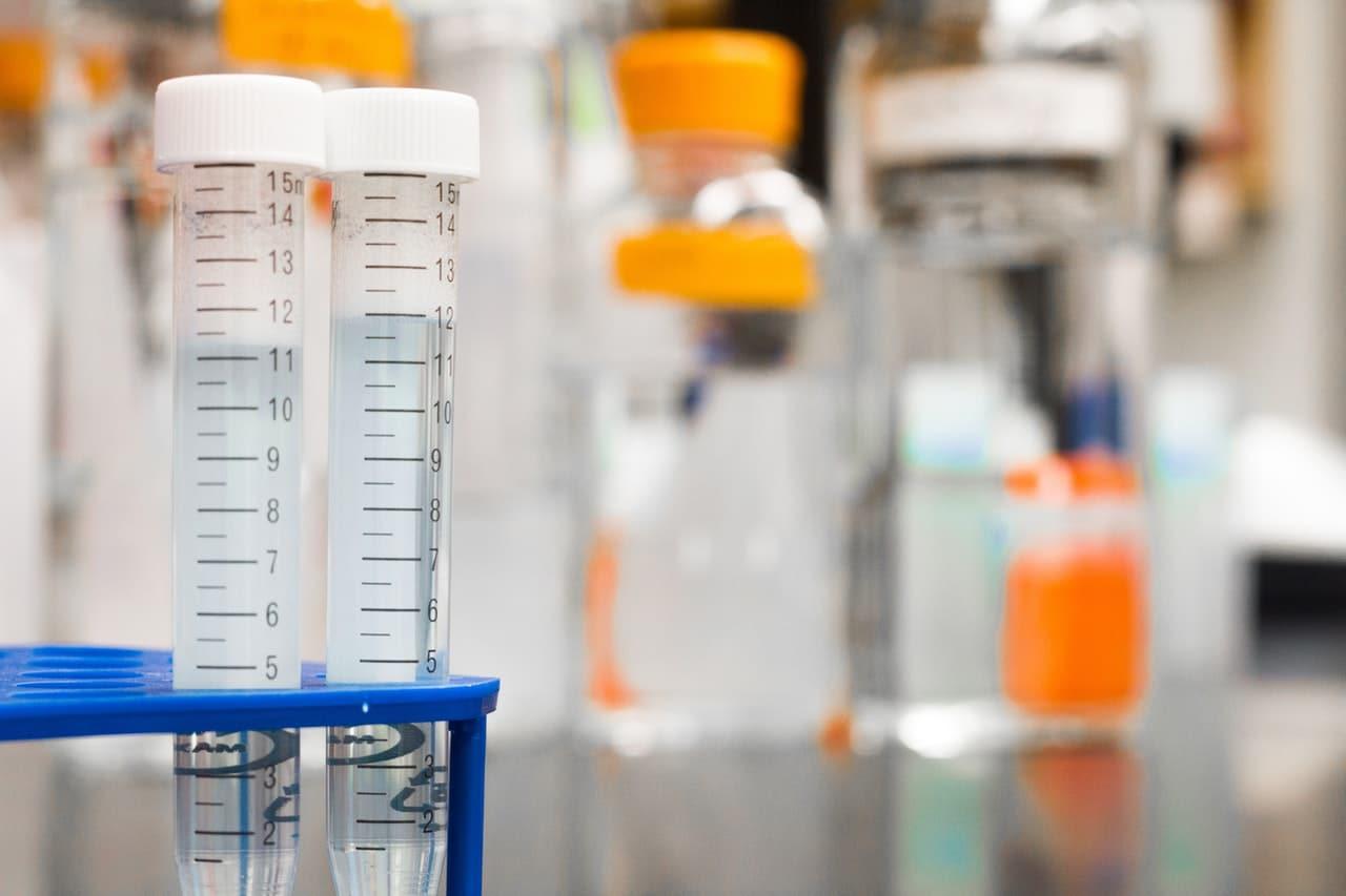 APTT, jako jeden ze wskaźników krzepliwości krwi. Jaka jest norma APTT, co oznacza APTT podwyższone, a co APTT niskie?