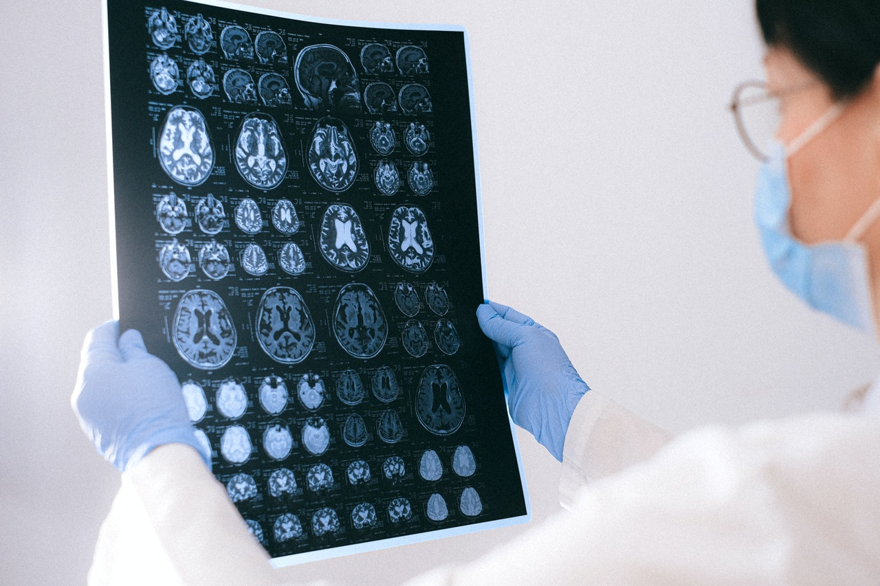 Badanie EEG dłowy i jego wyniki