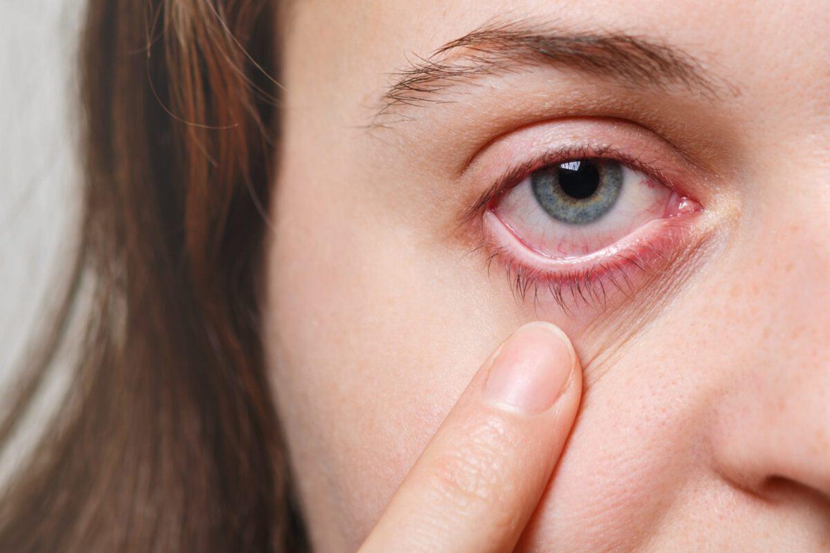 Kobieta z podwyższonym ciśnieniem w oczach