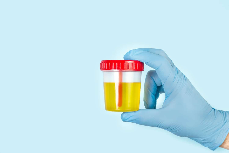 Badanie pH moczu – normy, wskazania, interpretacja wyników. Jak obniżyć pH moczu?