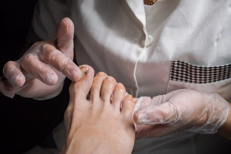 Czarna kreska na paznokciu świadcząca o nowotworze