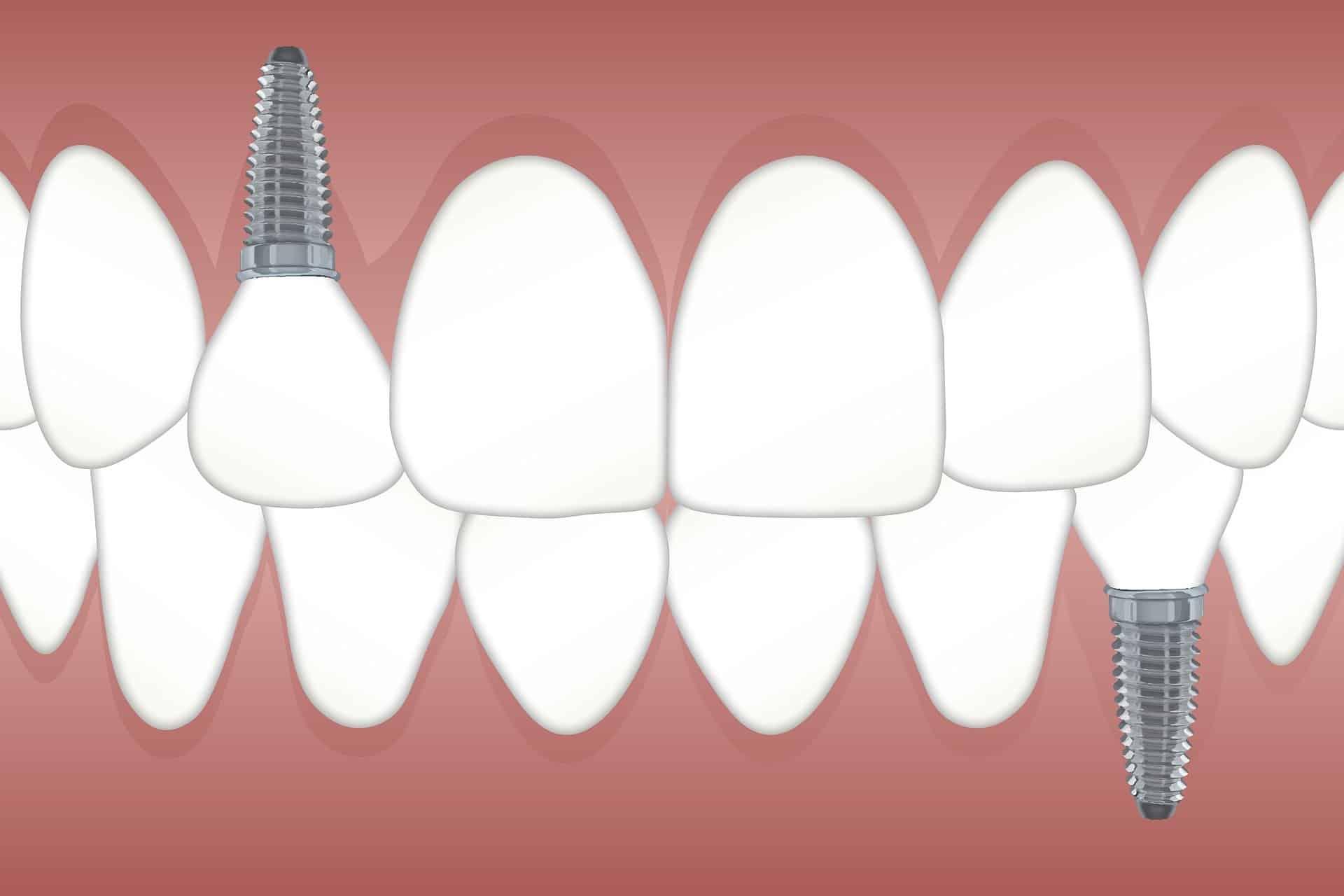 Implanty zębowe - jakie wiąże się z tym ryzyko?