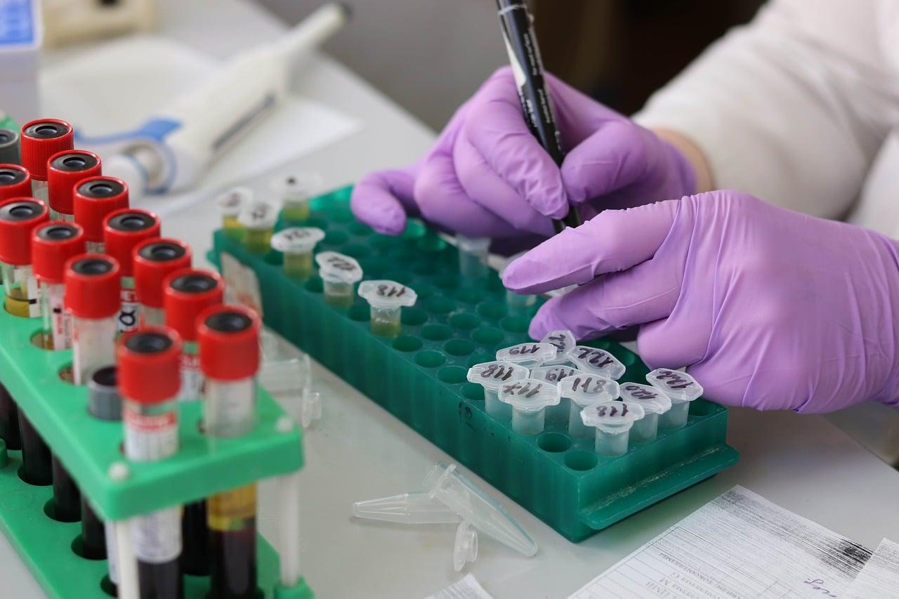 Kobieta opisująca próbki krwi pobrane do badania biochemicznego