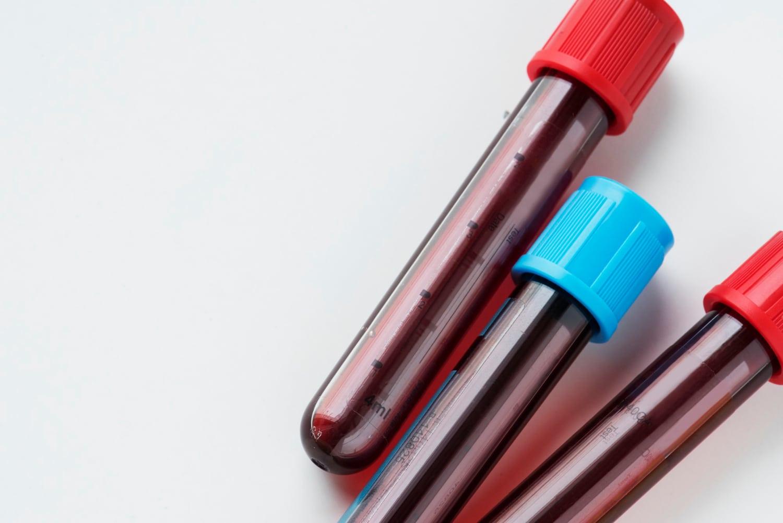 Badanie trzustki z krwi
