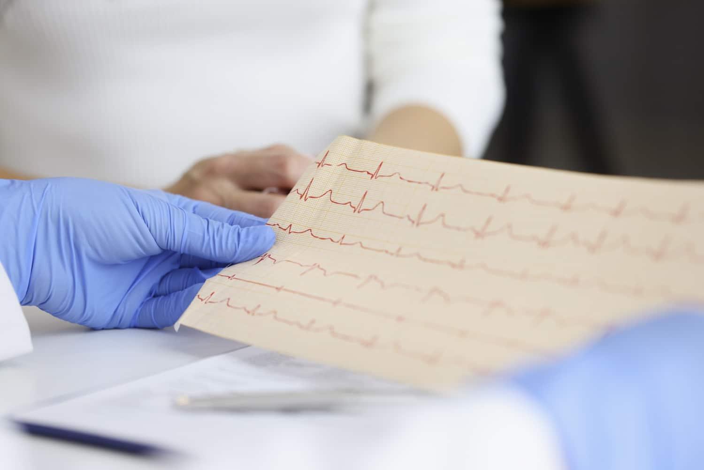 EKG przy diagnozowaniu dusznicy bolesnej