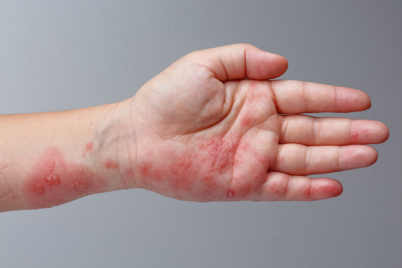 Bąble i pęcherzyki z płynem surowiczym na skórze - przyczyny, objawy, leczenie