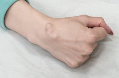 Fanglion nadgarstka