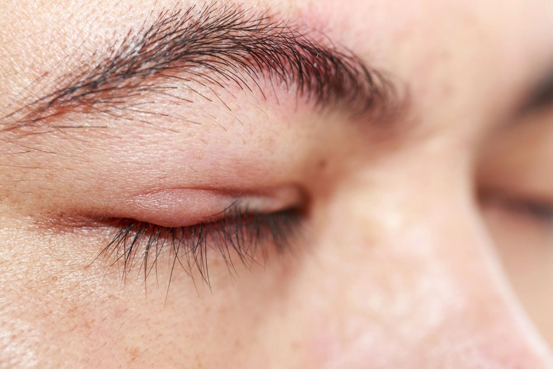 Twarz z gradówką na oku