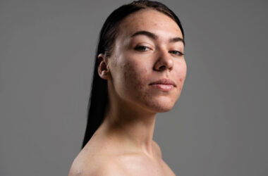 Kobieta stosująca leki na trądzik